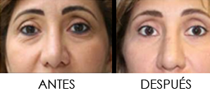 BLEFAROPLASTIA- Cirugía