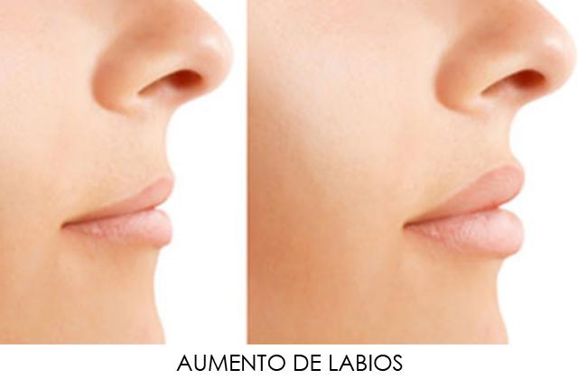 Aumento De Labios Acido Hialuronico