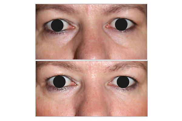 Como Eliminar Las Ojeras Con Pure Redensity Eyes®